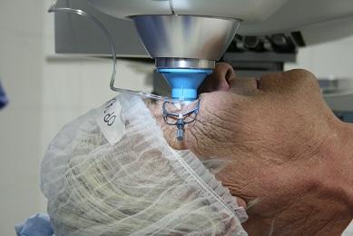 laser je 10x pĹ™esnÄ›jšĂ_ neĹľ ÄŤlovÄ›k, operace je bezbolestná a trvá jen nÄ›kolik minut
